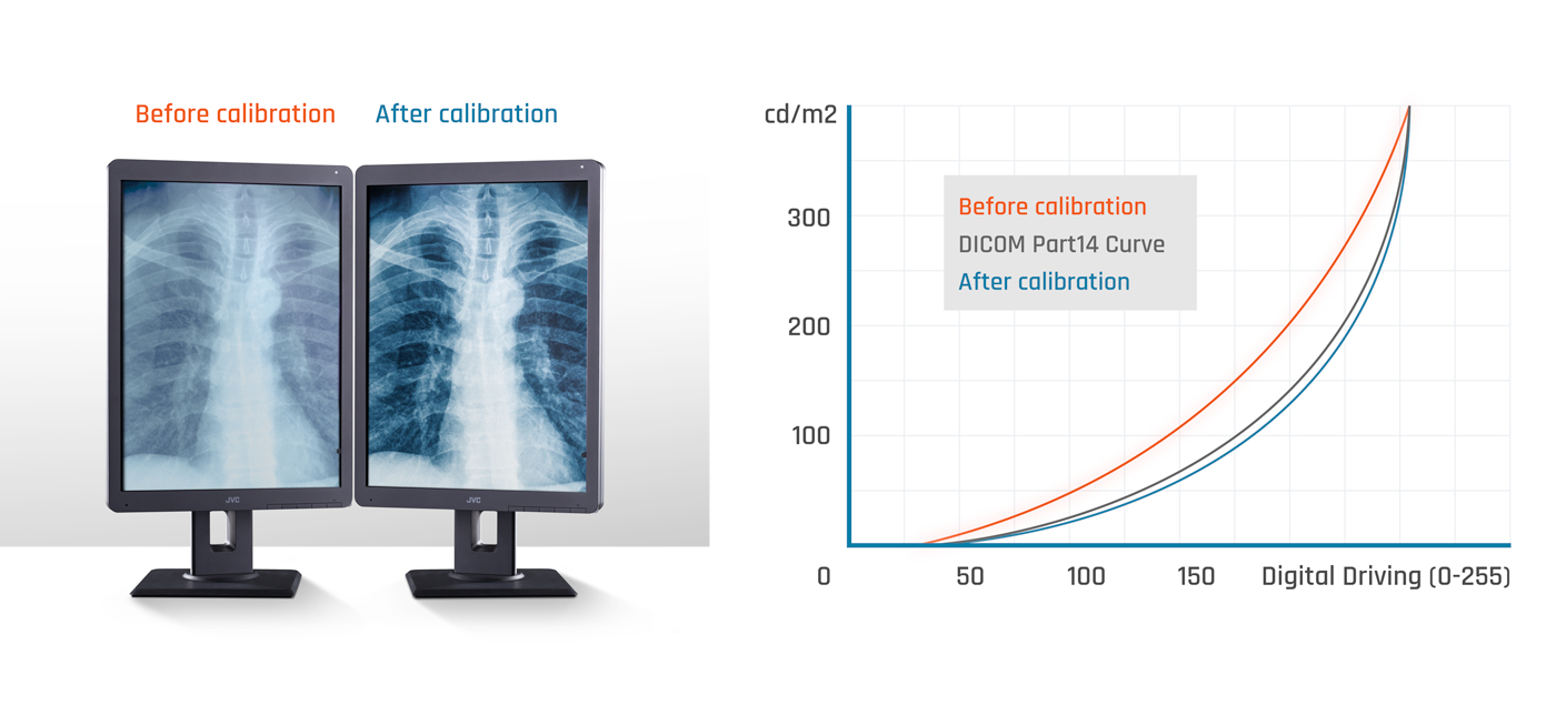 Before and after DICOM calibration